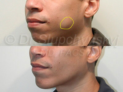 Fat Removal From Face 68