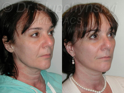 Minimally Invasive Facelift Surgeon