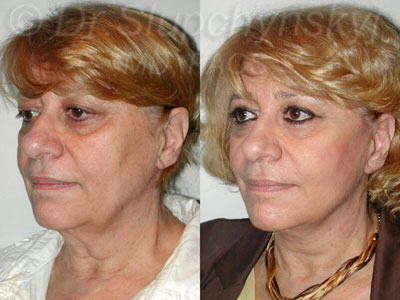Minimally Invasive Facelift Manhattan