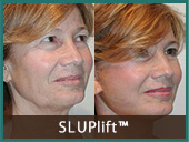 sluplift